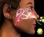 Hogyan értelmezzük a pollen allergiát?