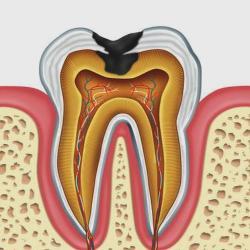 A fogszuvasodás