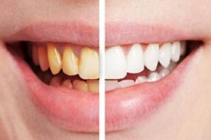 A fogkő és a foggyökerek