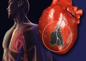 mit NE tegyünk szívroham esetén? - ködpiszkáló