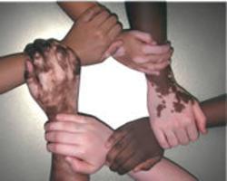 Vitiligo: Segít-e az önismereti, személyiségfejlesztő, stresszoldás tréning?